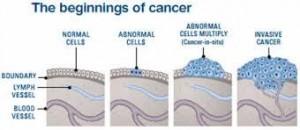 Central Nervous System Cancers