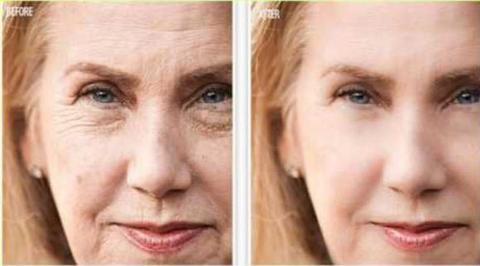 Do Anti-Aging Creams Really Work