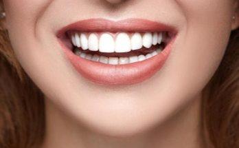 How to Maintain Dental Health in Waterloo